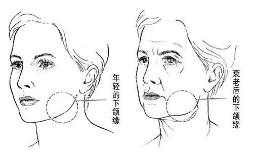 """杨大平:小切口MACS面部提升手术的""""力学""""解析与改良"""