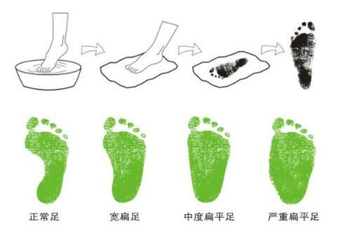 孩子足部无小事,严重后足外翻应当穿矫正鞋
